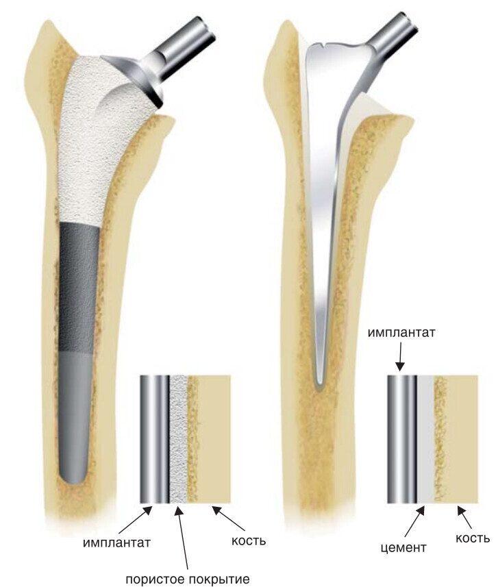Типы протезов при эндопротезировании тазобедренного сустава